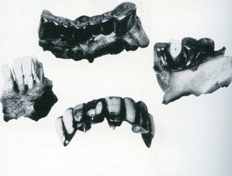 Adolf Hitler's teeth