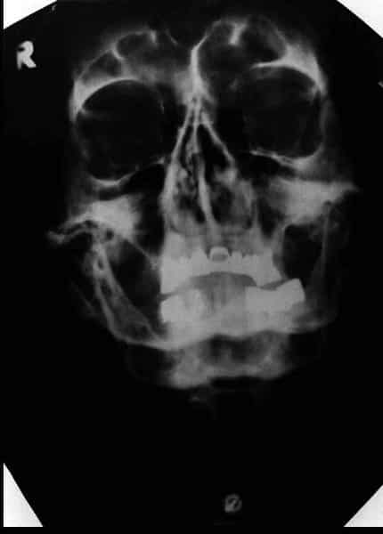 Adolf Hitler Skull X Ray